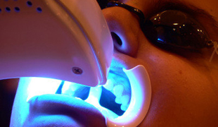 Dentist in Kerrisdale performing teeth whitening